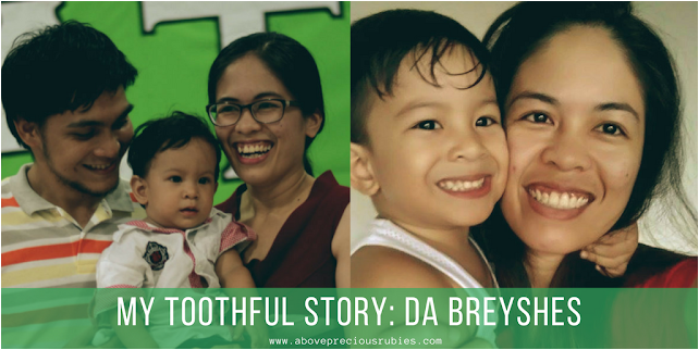 My TOOTHful Story + What to Expect When Getting Braces